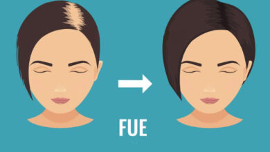 Photo of FUE Hair Transplant in Lahore: Everything You Should Know About It