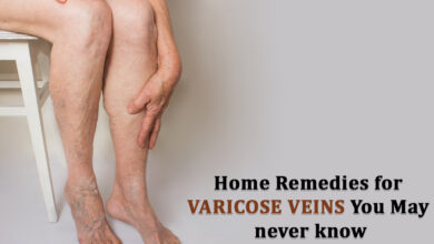 Photo of Home Remedies for Varicose Veins You May never know