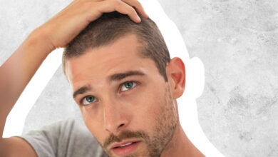Photo of Hair transplant – Complexities and Side effects