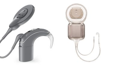 Photo of How does a cochlear implant different from hearing aid?