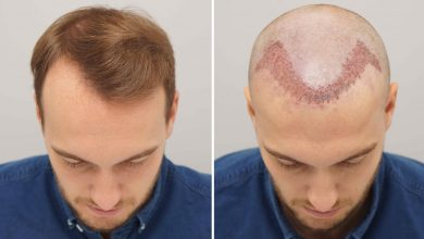 Photo of Post Hair Transplant Tips to follow