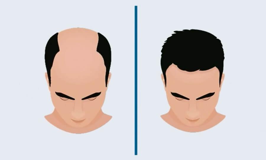 Hair Loss - FUE Hair Transplant
