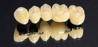 Photo of Metal-Ceramic crowns: An Overview