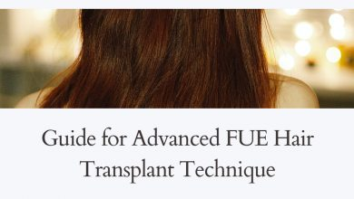 Photo of Guide for Advanced FUE Hair Transplant Technique
