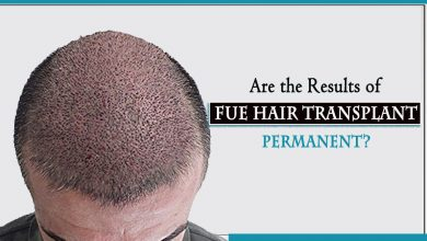 Photo of Are the Results of FUE Hair Transplant Permanent?