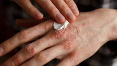 Photo of Is pruritus one of those skin conditions which can be helped by using LDN