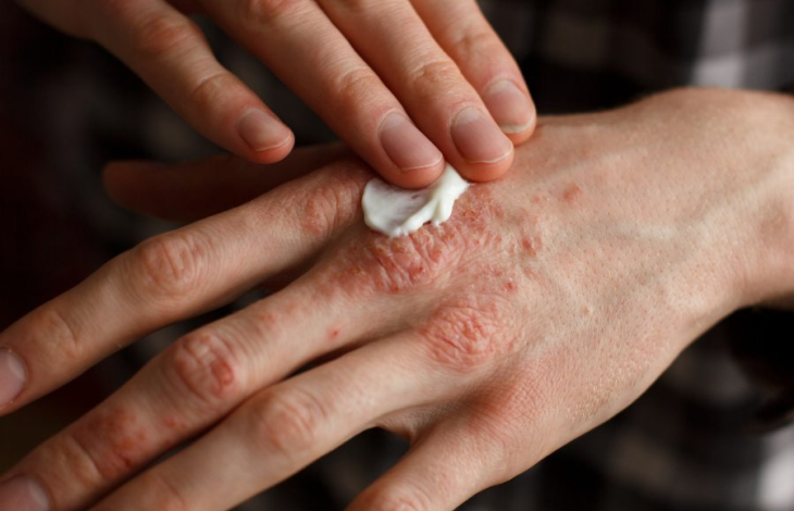 Is pruritus one of those skin conditions which can be helped by using LDN