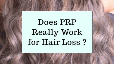 Photo of Does PRP Really Work for Hair Loss ?