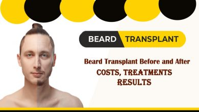 Photo of Beard transplant Before and After- Costs, Treatments, and Results