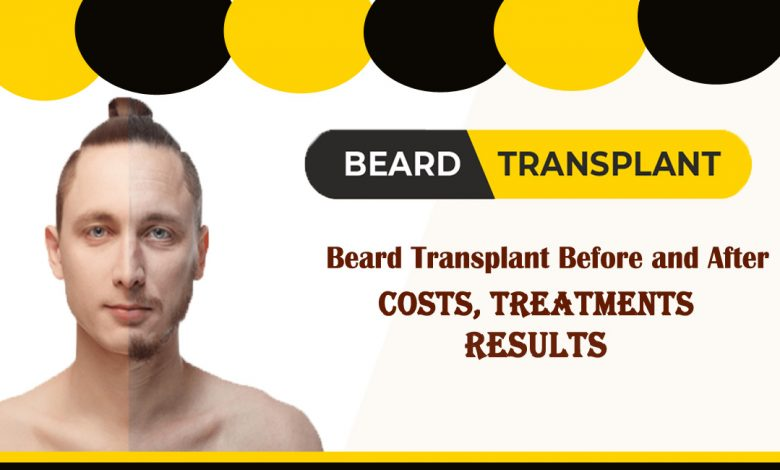 beard transplant- Beard transplant Before and After- Costs, Treatments, and Results