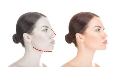 Photo of Coolsculpting vs kybella, which is better for stubborn fat?